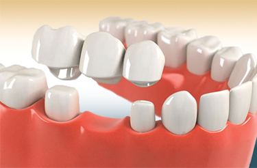 dental implants hyderabad