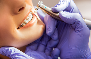 Orthodontics Hyderabad