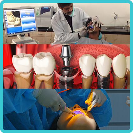 Dental Clinic Hyderabad