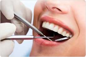 Cosmetic Dentist in Hyderabad