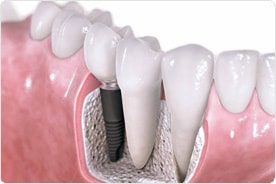 dental implants vijayawada